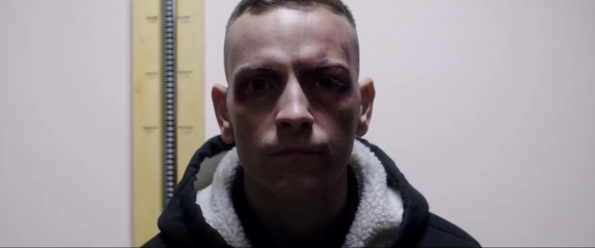 Alessandro Borghi interpreta Stefano Cucchi